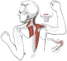 muscle pain in upper back picture 2