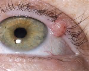 aayurvedic treatment for eyelid wart picture 1