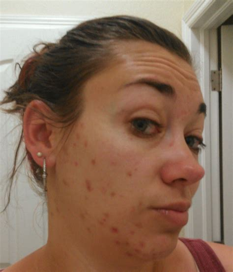 adult acne picture 1
