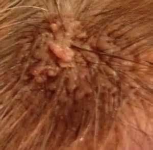 white mole or wart picture 21