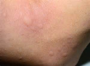 allergy skin picture 2