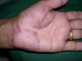 pics of neck skin rash picture 6