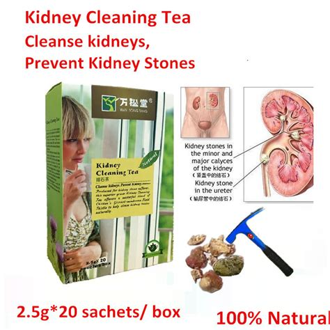 advocare cleanse and kidney stones picture 2