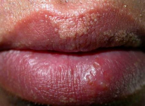 white pimples on lips picture 1