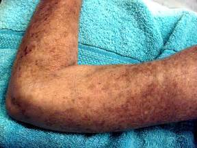 causes of changes of skin condition picture 15