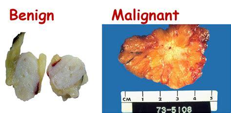non malignant colon tumors picture 10