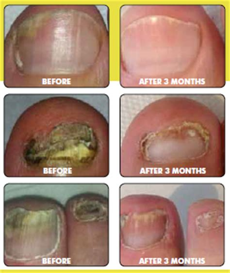 laser nail fungus oklahoma picture 10