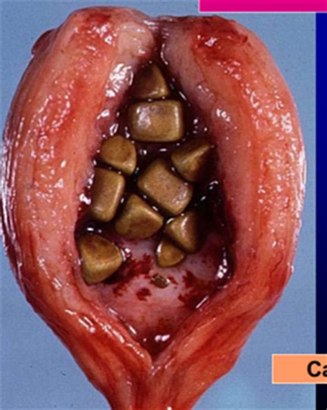treatment for cystolithiasis picture 3