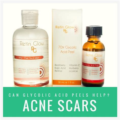 glycolic acid acne picture 2