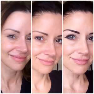 skin needling reviews picture 3