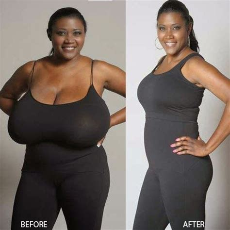 weight loss in breasts picture 10