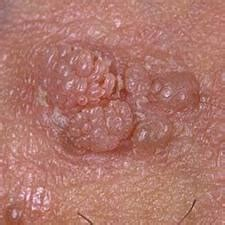 pictures genital warts in males penis head picture 9