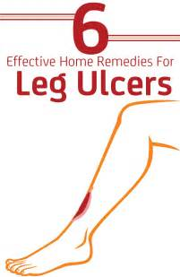 weight loss from ulcers picture 2