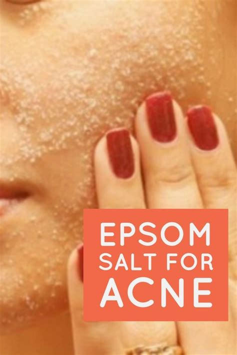 acne spot treatment with epsom salts picture 2