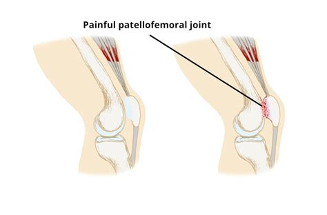 femoral joint pain picture 15