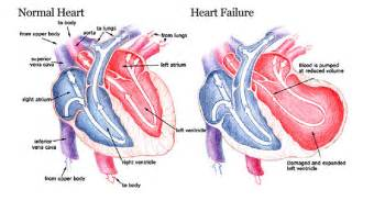 Stage 1 high blood pressure picture 11