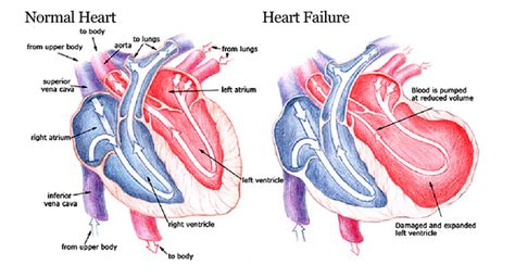 Cure high cholesterol picture 14
