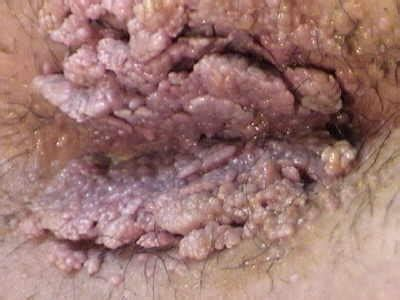 pictures of female genital warts picture 14
