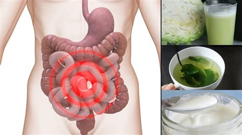 natural remedies for irritable bowel syndrome picture 6