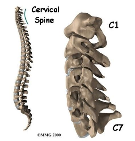 cervical facet joint procedure picture 6