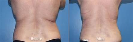 tightene skin after liposuction picture 7
