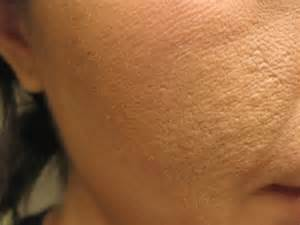 does the skin texture change post hysterectomy picture 5