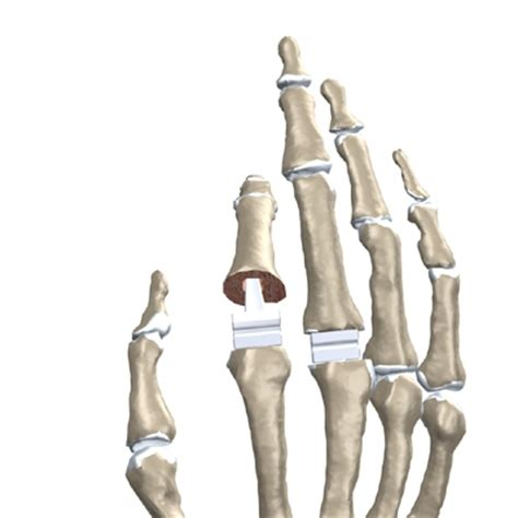 finger joint replacements picture 11