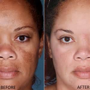 skin lightening cream picture 2