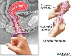 aging vulva picture 13