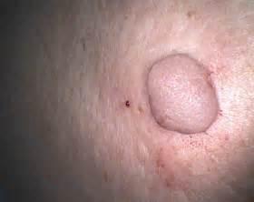 skin fibroma picture 7
