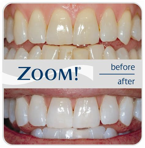 zoom teeth whitening picture 1