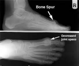 knee joint bone spurs growth time picture 3
