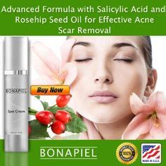 salicylic acid for removal of dark spot on picture 15