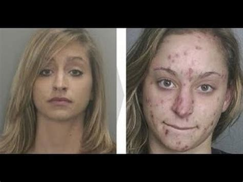 cocaine and weight loss picture 9