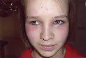 skin allergy around eyes picture 19