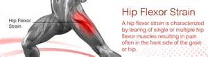 hip flexor muscle pull picture 5