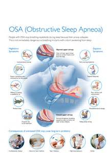 symptoms of obstructive sleep apnea picture 10