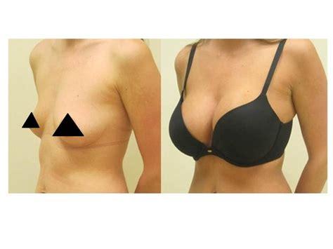 breast enhancement 400cc picture 2