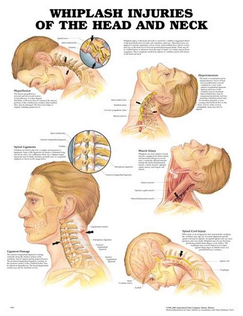 muscle spasms of the neck and shoulders picture 6