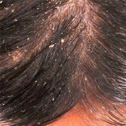 dandruff of the skin picture 6