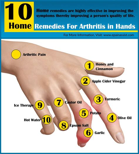 home remedies for knuckle pain picture 3