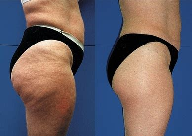 who does laser therapy for weight loss and picture 7