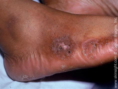 discoid rash with candida picture 7
