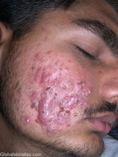 acne comedonica synonyms picture 5