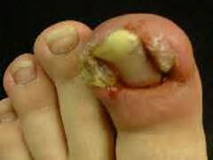 cure for yellow toe nail fungus picture 7