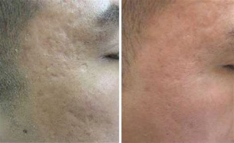 fraxel laser for acne scarring picture 5