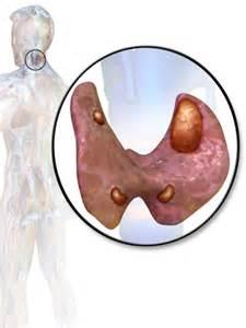 parathyroid adenoma picture 7