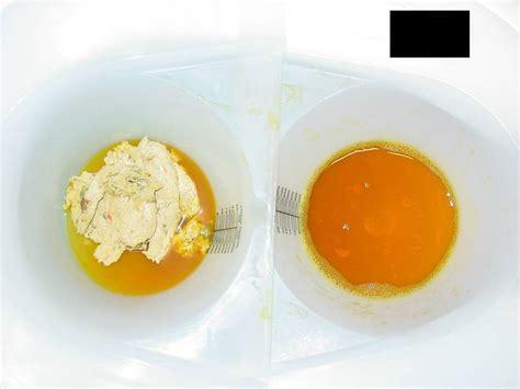 gall bladder & diverticulitis picture 10