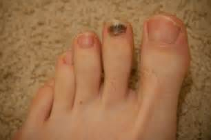 toenail fungus under nail black picture 14