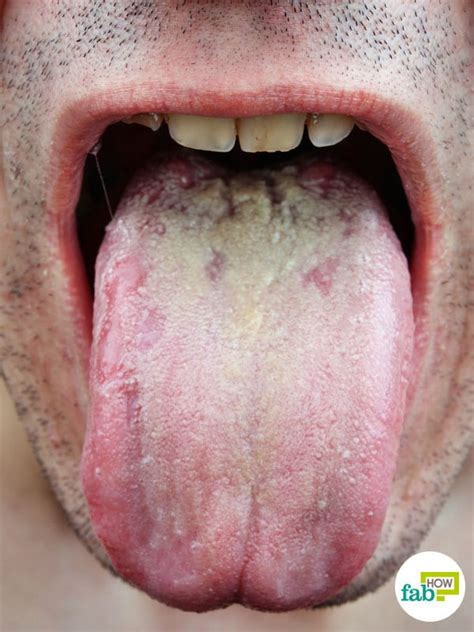 white coated tongue yeast picture 1